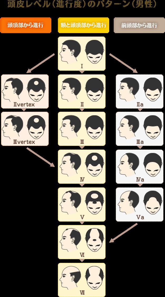 頭皮レベル(進行度)のパターン(男性)